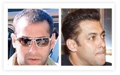 Top 11 Bollywood Actors Who Went For Hair Transplant ...
